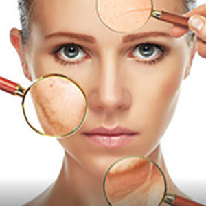 medispa for skin blemishes