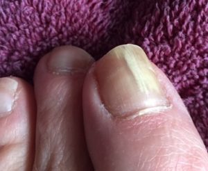 toe nail with fungus